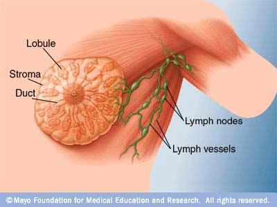 kanker-payudara
