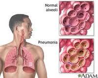 cara mengobati paru-paru