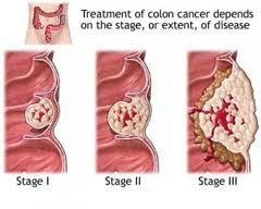 Obat Kanker Usus Halus Tradisional